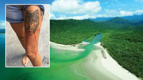 24-year-old tourist bitten by a small crocodile at Cape Tribulation. Source: Facebook