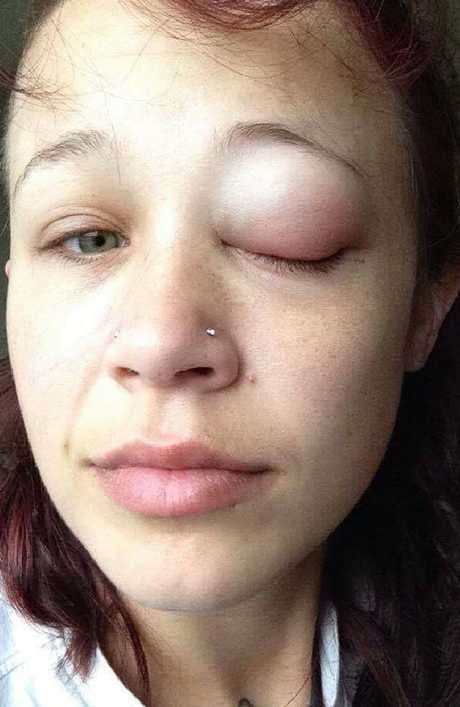 Catt Gallinger eye tattoo gone wrong. Picture: Facebook