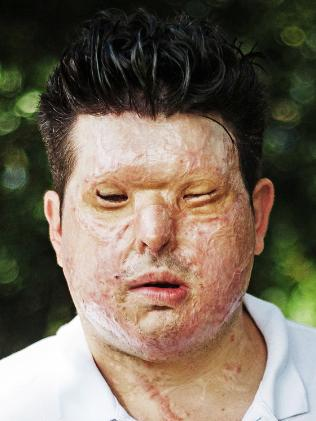 Acid attack victim Andreas Christopheros in September this year. Picture: Yohan Bonnet / Hans Lucas.