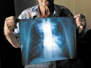 US black lung expert to train Mackay radiologists, doctors