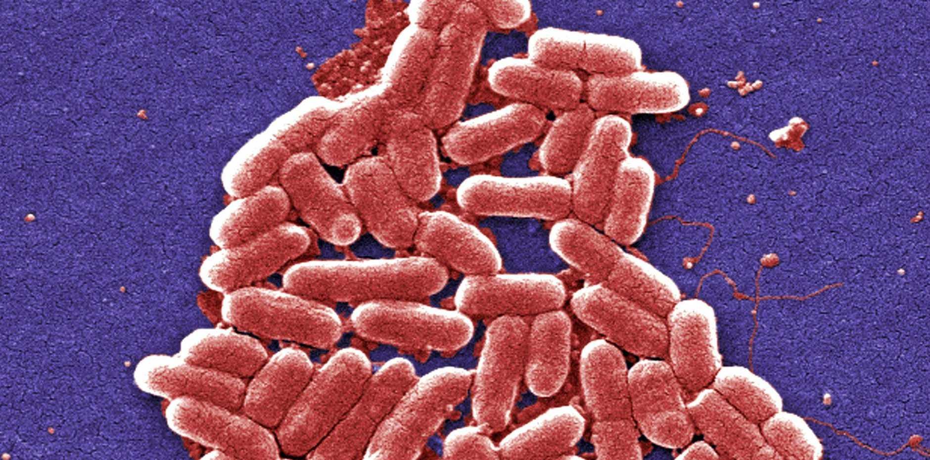 FILE PHOTO: E. Coli bacteria.