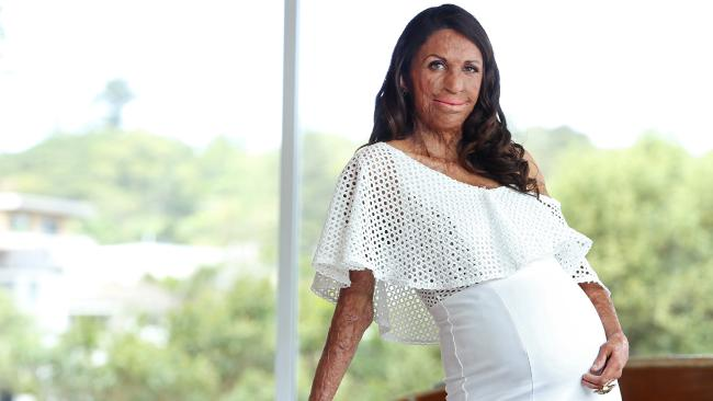 Turia Pitt was really excited about giving birth. Picture: Richard Dobson