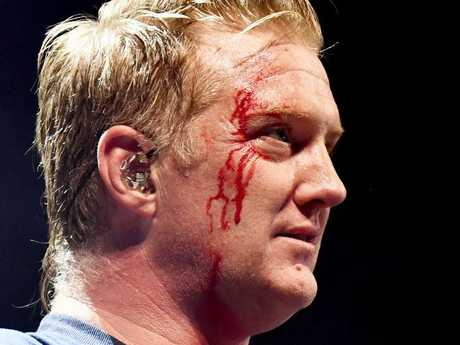 Josh Homme of Queens of the Stone Age performs with a bloody face onstage during KROQ Almost Acoustic Christmas 2017 in Los Angeles