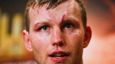 Jeff Horn, with cut, after his win over Gary Corcoran. Photo: Patrick Hamilton (AFP)