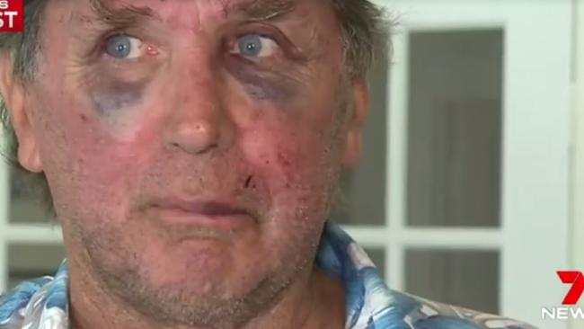 Rod Pilling was bashed after telling men to stop swearing.