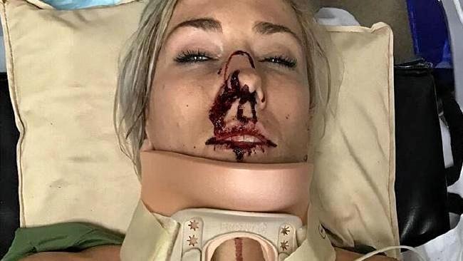 Caroline Buchanan shows off injuries.