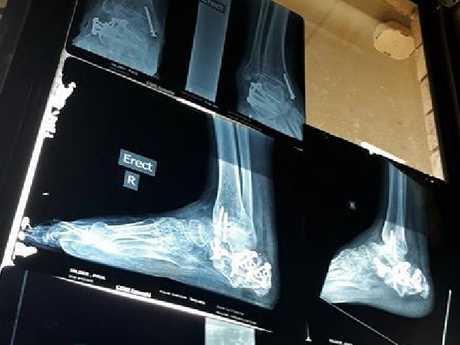 After multiple surgeries, Mr Hilder was still in pain.