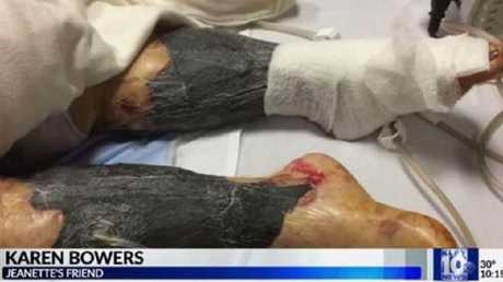 Jeanette LeBlanc's legs were ravaged by the flesh-eating bacteria. Picture: KLFY