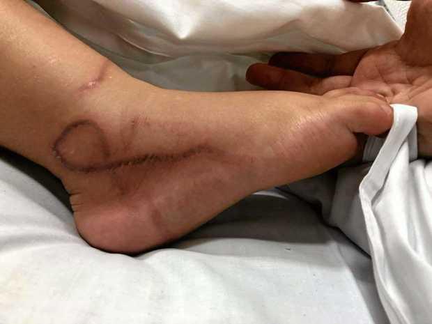 Two-year-old Ellie Ballantyne was stung by a box jellyfish.