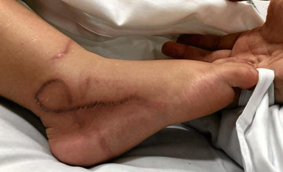 Two-year-old Ellie Ballantyne was stung by a box jellyfish.