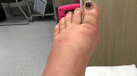 Benita Guilfoyle was stung on the foot by a freshwater stonefish while swimming in Hell Hole Creek, Mooloolah Valley, and suffered severe pain.Contributed photo of the injured foot.