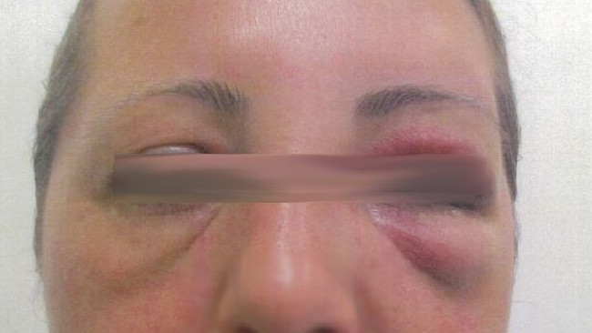 A woman has been punched in the face following a verbal fight in Maribyrnong in September.