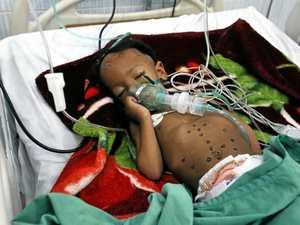 Famine stalks 11m in Yemen, 22m need aid