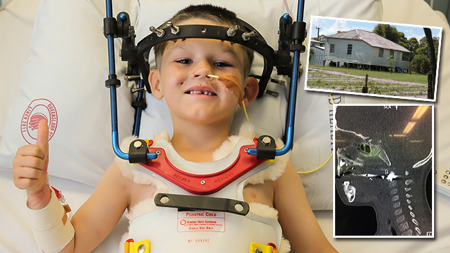 Cameron Calvisi is recovering at the Lady Cilento Children's Hospital. Picture: Mark Cranitch