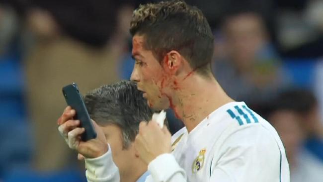 Cristiano Ronaldo assesses his injury.