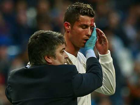 Cristiano Ronaldo with blood streaming down his face.