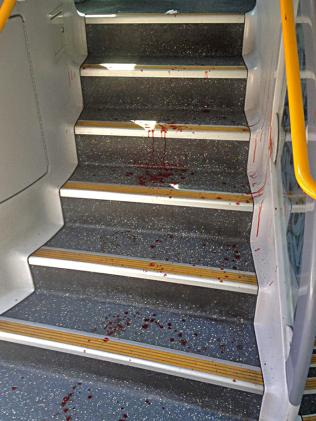 Blood on the train steps.