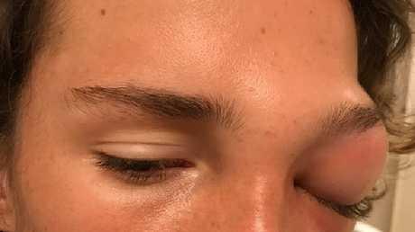 Riley Adams had a very swollen eye. Picture: Jason and Jodi Adams/GoFundMe