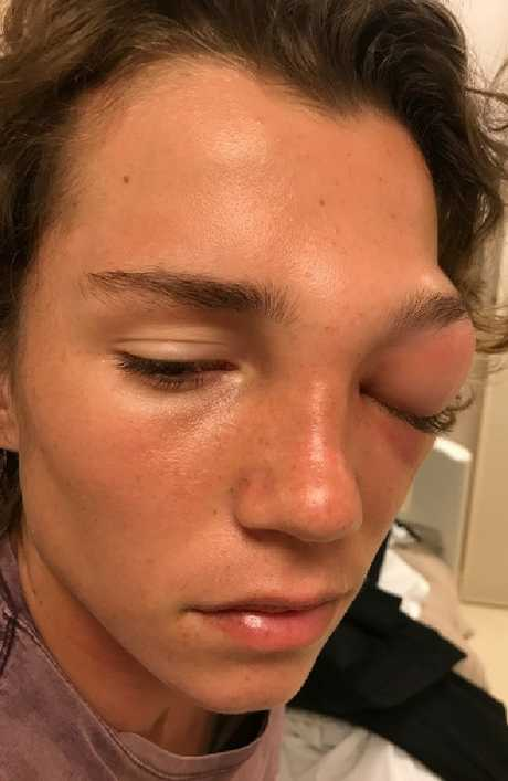 Riley Adams had a very swollen eye. Picture: Jason and Jodi Adams/GoFundMe