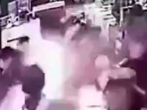 Phone explodes in man's face in store