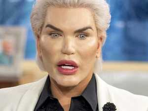 'Human Ken Doll' has ribs removed