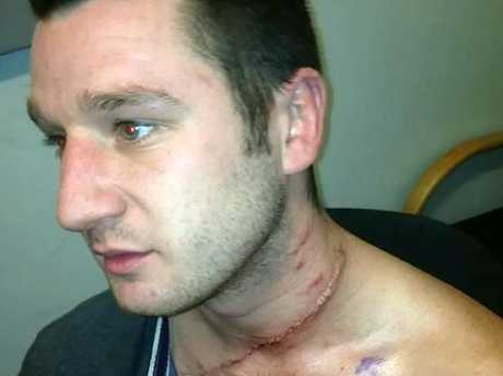 Anthony Milburn has his neck slashed his friend's jealous girlfriend. Picture: Supplied