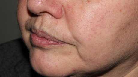 Karine's lip liner after being removed using laser.