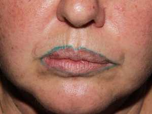 Woman's green tattooed lip liner horror