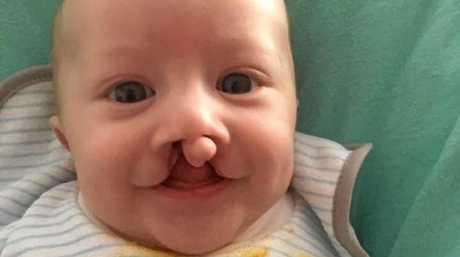 Charlie before his lip surgery.