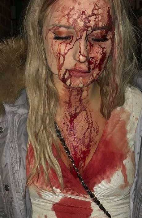 Sophie Johansson had a bottle smashed on her head in a Swedish nightclub. Picture: Supplied