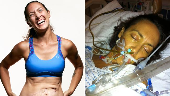 Colleen Alexander after (left) and during her 5-week coma. Picture: Runner's World/Reed Young Giving Blood Feels Good