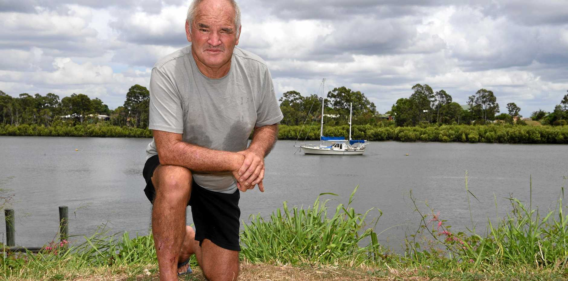 IF LOSING his toe wasn't enough, Bundaberg's Rod Fraser lost his driver's licence after what he claims