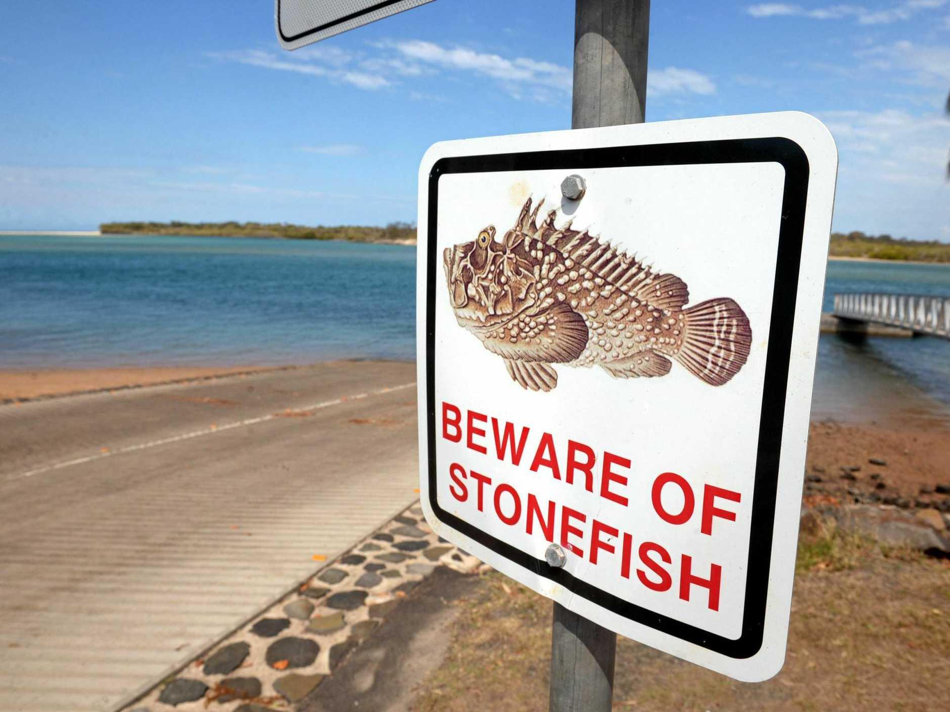 Beware stonefish.