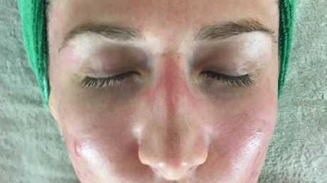 Rebecca Mason undergoing a skin treatment.