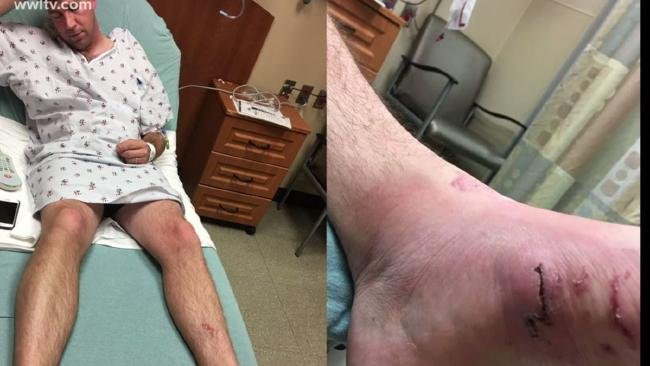 Honeymooner Brant Aymond had a paddle boarding accident on a cruise holiday, which became much worse after the on-board doctor didn't realise the extent of his injuries. Picture: WW-LTV