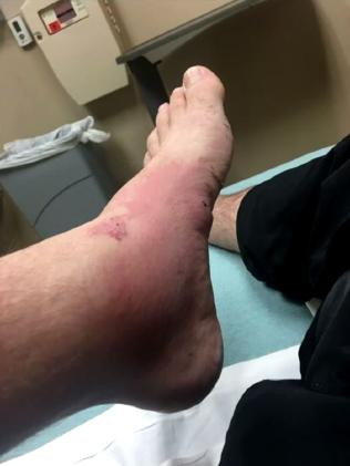 As the infection worsened, a rash crept up Mr Aymond's leg. Picture: WW-LTV