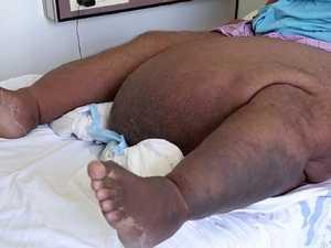 Mozzie bite causes 14kg lump