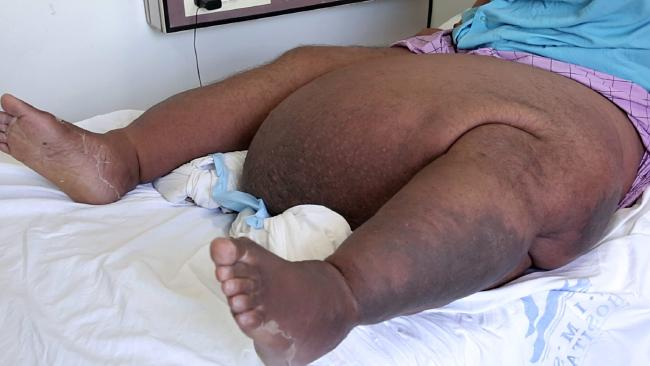 Saidalavi, who has an enormous swollen mass growing from his left thigh. Picture: Caters