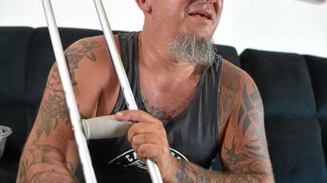 Corey Goryl suffered a work place accident and  suffered a badly broken leg. He lives with his partner Paula McCulloch on the top floor of a Caloundra unit complex withouit a lift and struggles to get downstairs. The coulpe are looking for a ground floor unit to make their life easier.