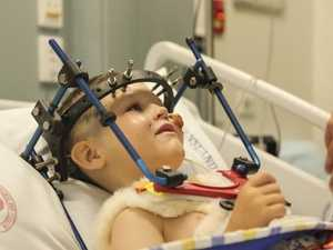 Cameron Calvisi, 5, was accidentally shot in the face by his cousin. Picture: Mark Cranitch.