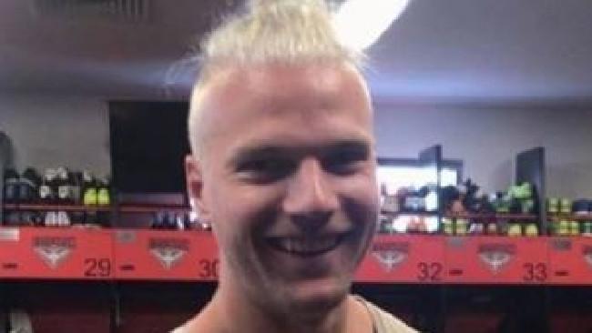 Jake Stringer's new hair.