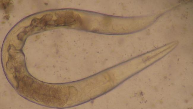 Roundworms and hookworms infect billions of people all around the world causing a variety of diseases, very often involving anaemia and diarrhoea. Picture: Julie Balen, Queensland Institute of Medical Research.
