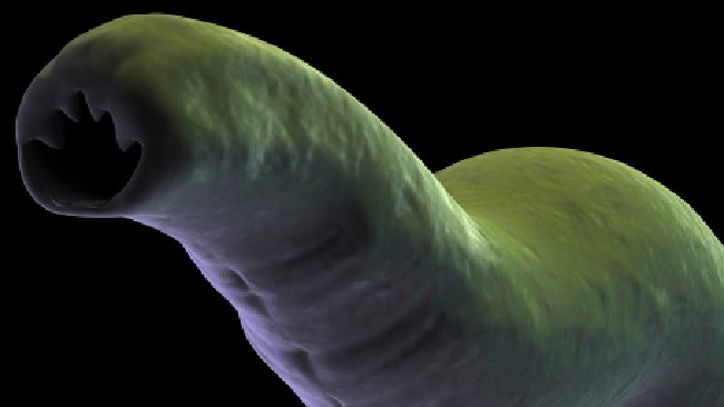 Hookworm infections occur in an estimated 576 to 740 million people worldwide. Picture: Supplied.