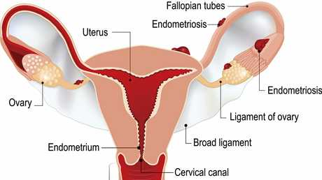 ENDO EXPLAINED: Endometriosis is a complex disease that occurs when parts of the uterus develop outside the uterus and on surrounding pelvic organs.