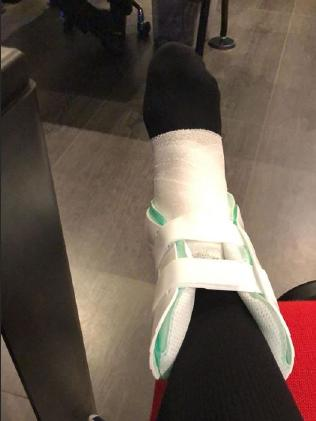 Neymar has shared a photo of his injury