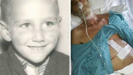 Russell Clark as a child and as an adult in hospital, following one of several liver transplants.