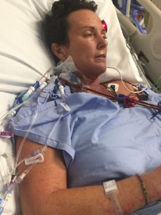 Shelley Hill is no longer on life support but remains on dialysis.