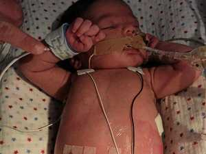 Family in turmoil as baby fights for life