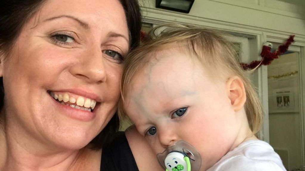 PLEASE HELP: Mother-of-two Jane Mahon needs to raise $180,000 to travel to the US for treatment. Her baby girl Matilda has a rare medical condition which causes the veins on her head to bulge. Without treatment she will die.