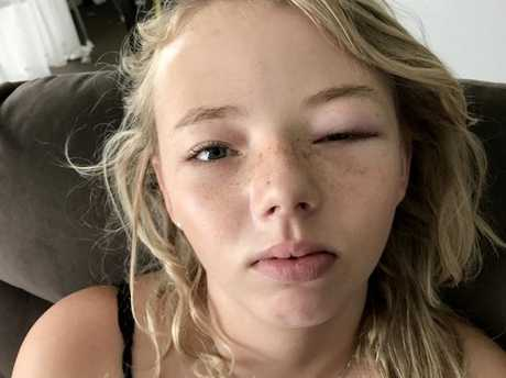 Brisbane teen Angel Boulton had a severe allergic reaction after using a Kmart eye mask on the weekend. Picture: Clare Boulton/Caters News